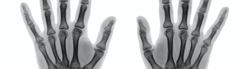 gebroken hand letselschade advocaat amsterdam